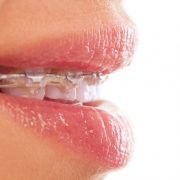 Braces and mouth expanders in Hastings, MI - Gole Dental Group