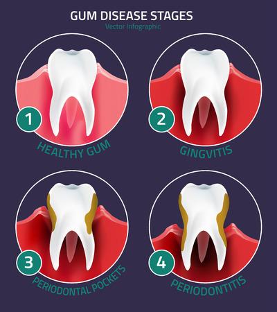 Healthy habits can help prevent gum diseae