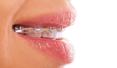Braces and Mouth Expanders Close to Home in Hastings, MI - Gole Dental Group