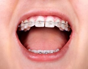 cost of braces, types of braces and what to expect