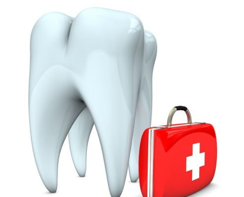 Dental symptoms not to ignore - gole dental group