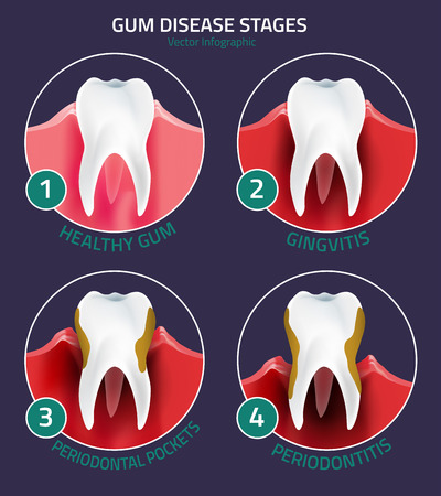 Healthy Habits to Prevent Gum Disease - Gole Dental Group Hastings MI