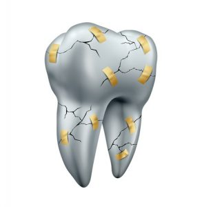 Options for Fixing a Broken Tooth from Gole Dental Group Hastings MI