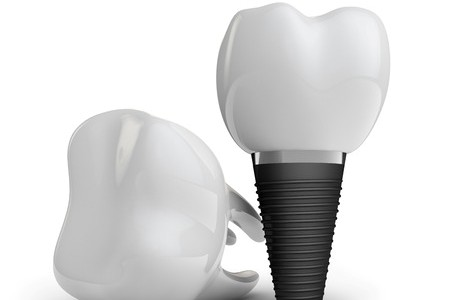 Dental Implant Candidate Information from Gold Family Dental in Hastings, MI - goledentalgroup.com