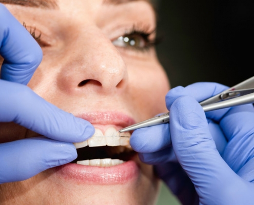 Metal vs. Ceramic Braces from the Gole Dental Blog - goledentalgroup.com