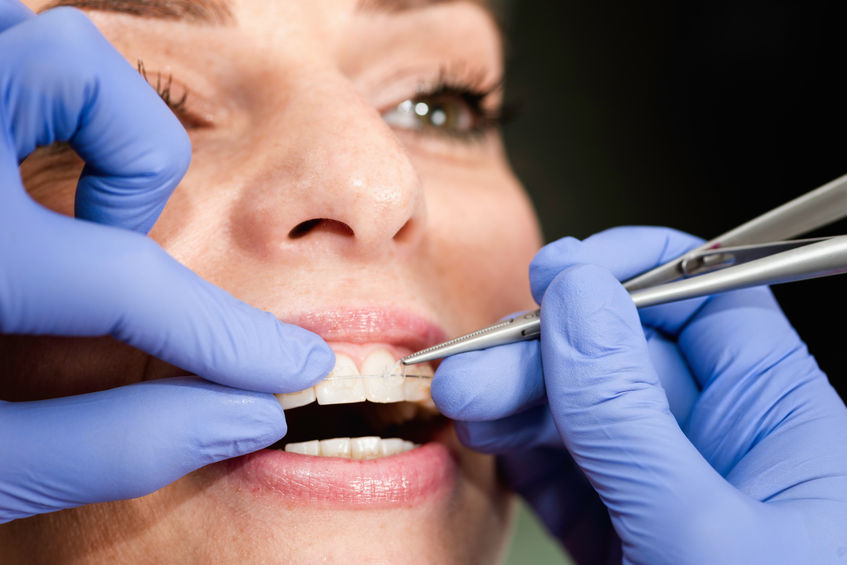 Metal vs  Ceramic Braces - Which is Best? | Gole Dental Group