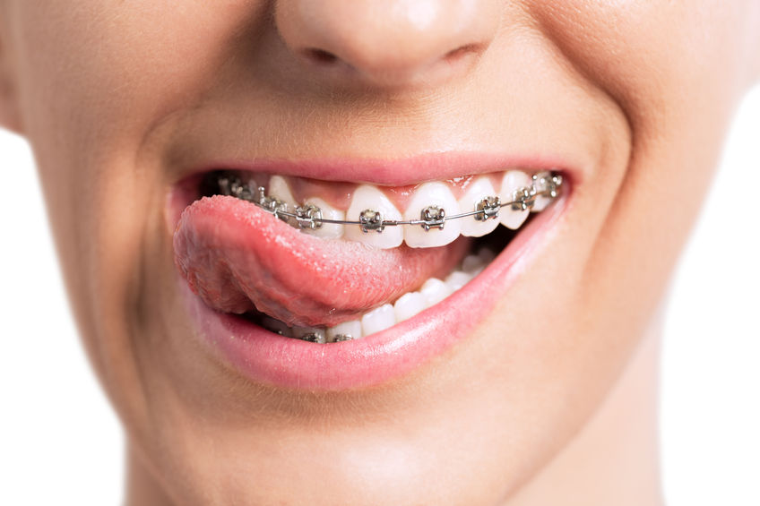 Braces: The Making of a Beautiful Smile - GoleDentalGroup.com